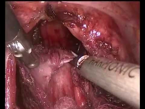 Heller operation in achalasia